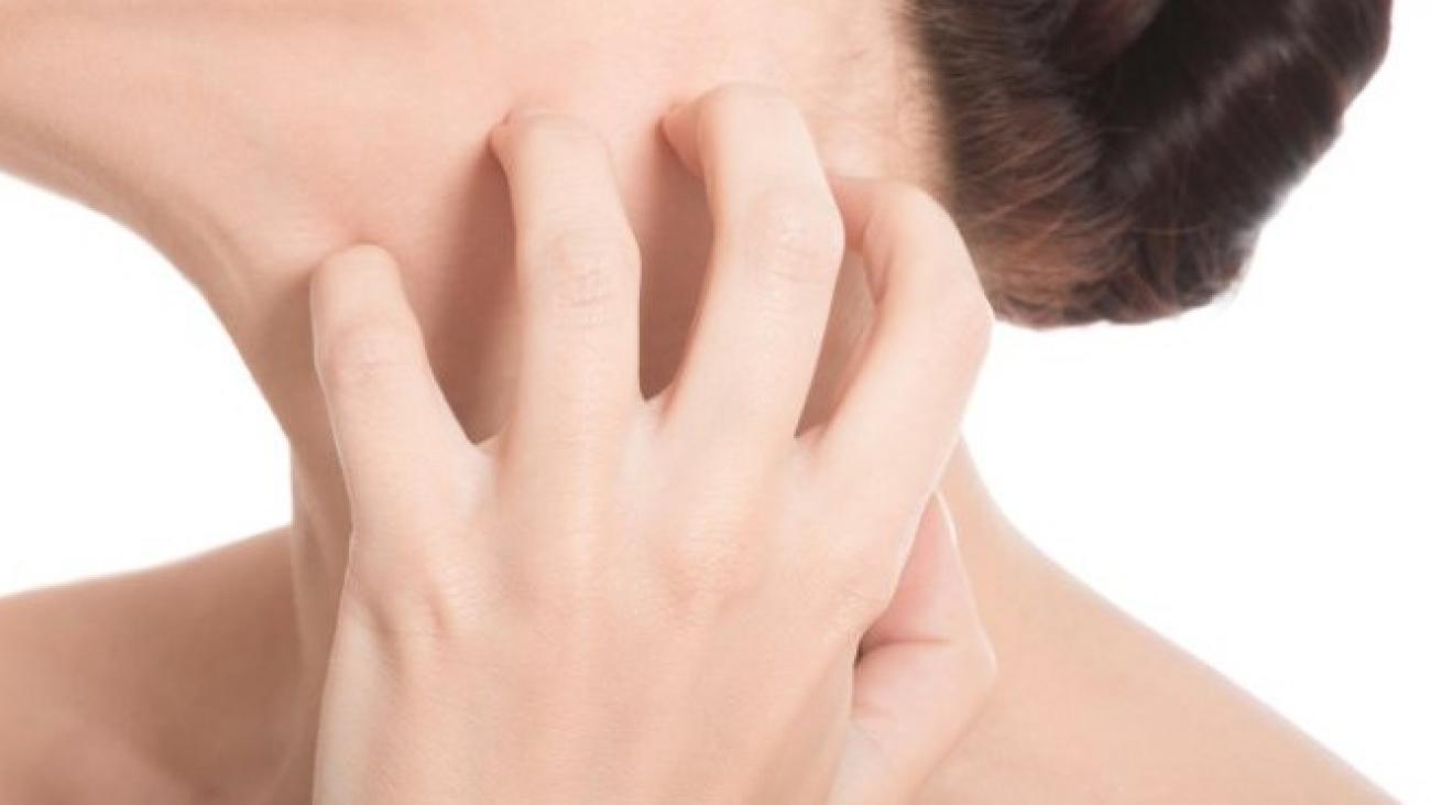 saude-psoriase-perguntas-respostas-77465